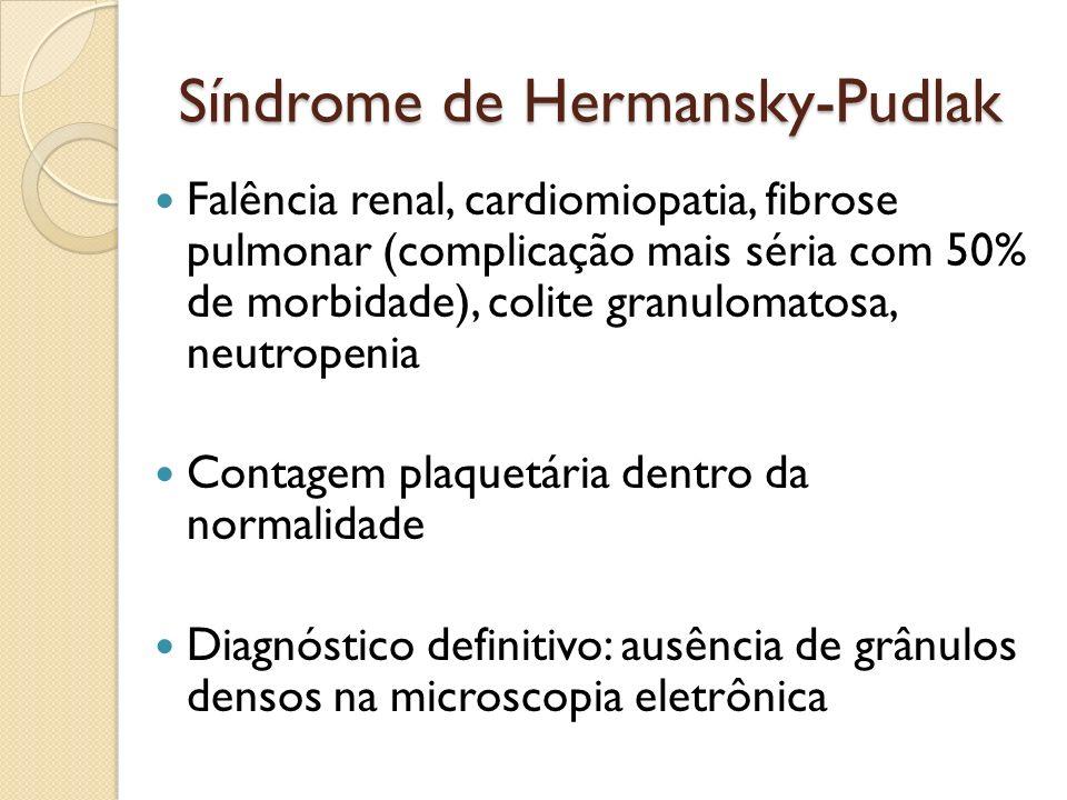 Síndrome de Hermansky-Pudlak Falência renal, cardiomiopatia, fibrose pulmonar (complicação mais séria com 50% de morbidade), colite granulomatosa, neu