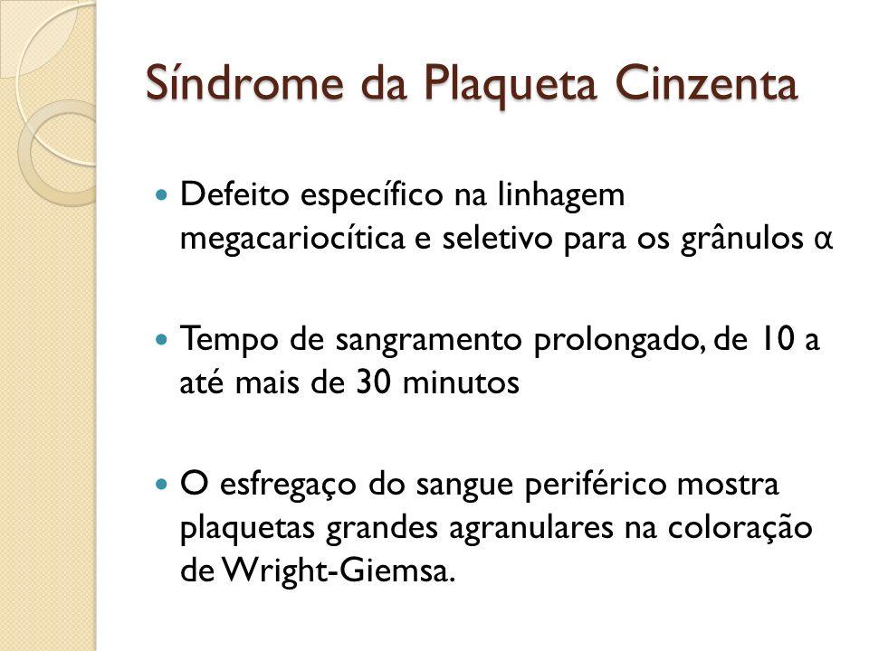 Síndrome da Plaqueta Cinzenta Defeito específico na linhagem megacariocítica e seletivo para os grânulos α Tempo de sangramento prolongado, de 10 a at