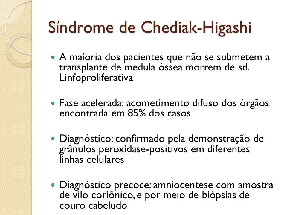 Síndrome de Chediak-Higashi A maioria dos pacientes que não se submetem a transplante de medula óssea morrem de sd. Linfoproliferativa Fase acelerada: