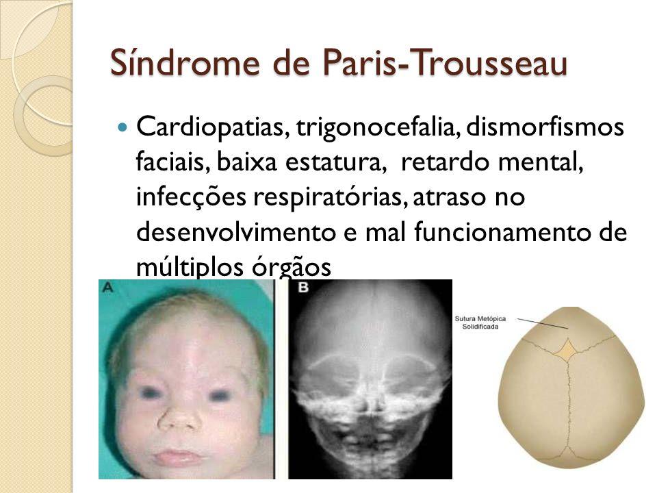 Síndrome de Paris-Trousseau Cardiopatias, trigonocefalia, dismorfismos faciais, baixa estatura, retardo mental, infecções respiratórias, atraso no des