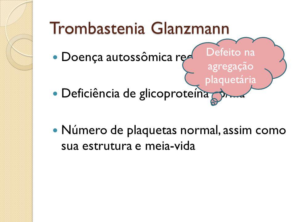 Trombastenia Glanzmann Doença autossômica recessiva Deficiência de glicoproteína IIb/IIIa Número de plaquetas normal, assim como sua estrutura e meia-