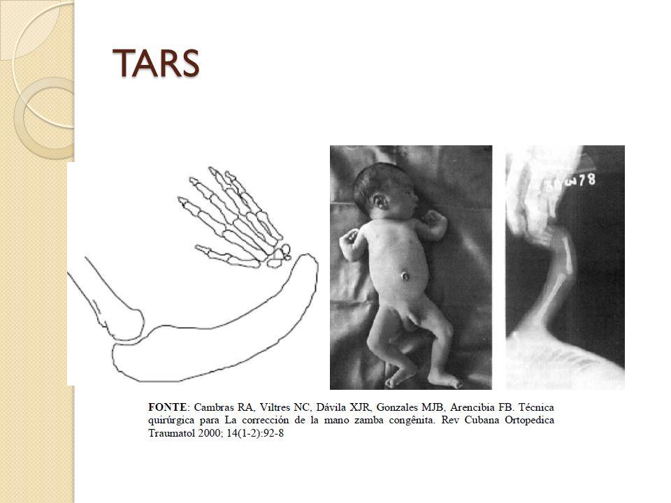 TARS Prognóstico: depende da trombocitopenia nos primeiros meses de vida (alto risco de hemorragia gastrointestinal ou cerebral) Atraso do desenvolvimento em 7% dos casos (hemorragia intracraniana) Diagnóstico pré-natal: ecografia evidência aplasia bilateral do rádio e trombocitopenia estabelecida por cordocentese