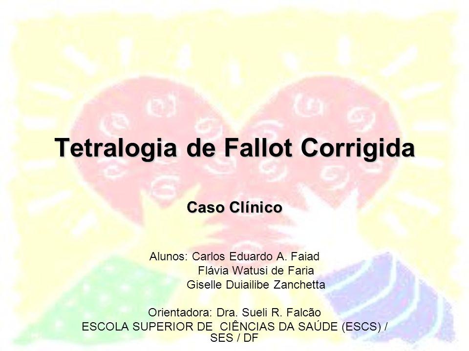 Anatomia na Tetralogia de Fallot 1.Defeito do septo ventricular 2.