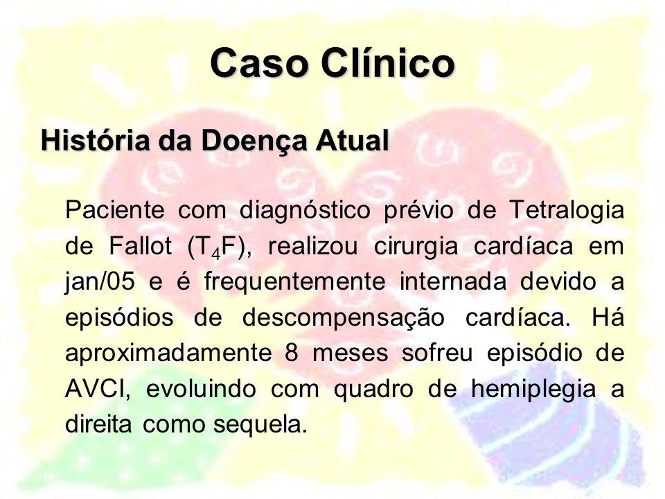 Anatomia na Tetralogia de Fallot Na Tetralogia de Fallot com atresia pulmonar: Mesma lesão intra-cardíaca Complexidade da malformação depende da anatomia da circulação pulmonar
