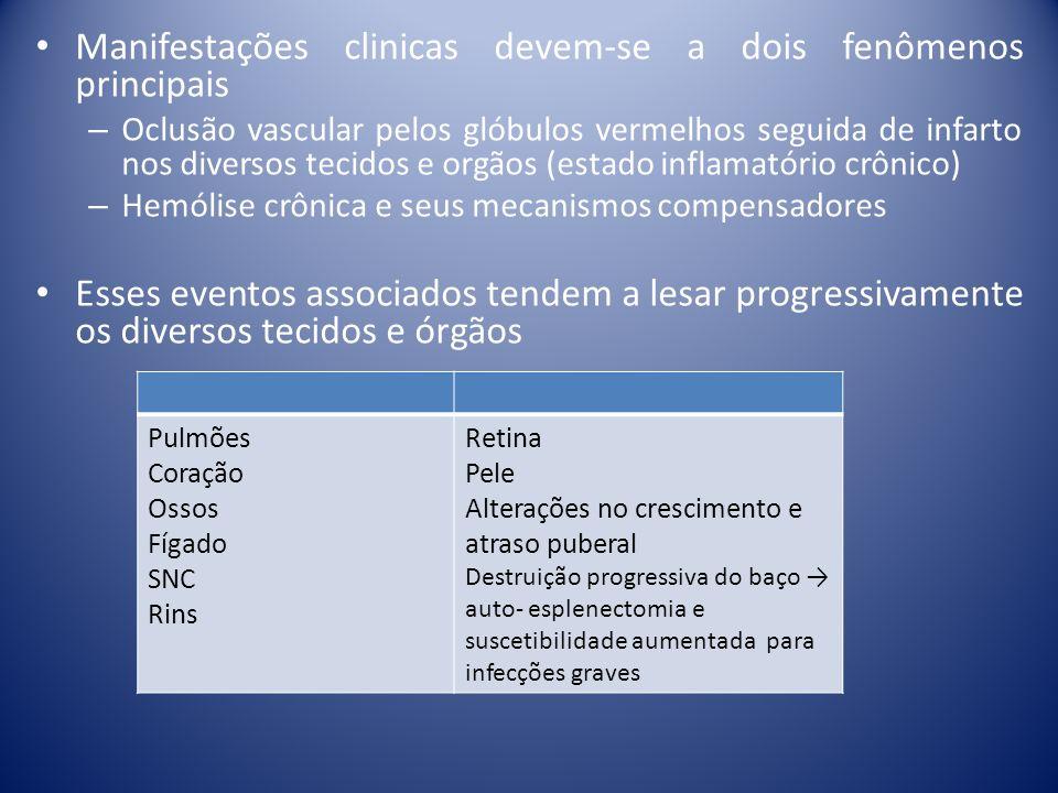 Morfologia do sangue periférico – Presença de hemácias em foice achado clássico na doença falciforme após 1º ano de vida, antes ausentes pelo elevado nível de hemoglobina fetal – Hemácias em alvo nas S/β-talassemia e hemoglobinopatias SC – Corpúsculos de Howell-Jolly refletem hipofunção esplênica – Eritroblastos circulantes ( 5-10%) – Hemácias fragmentadas, policromasia e esferócitos