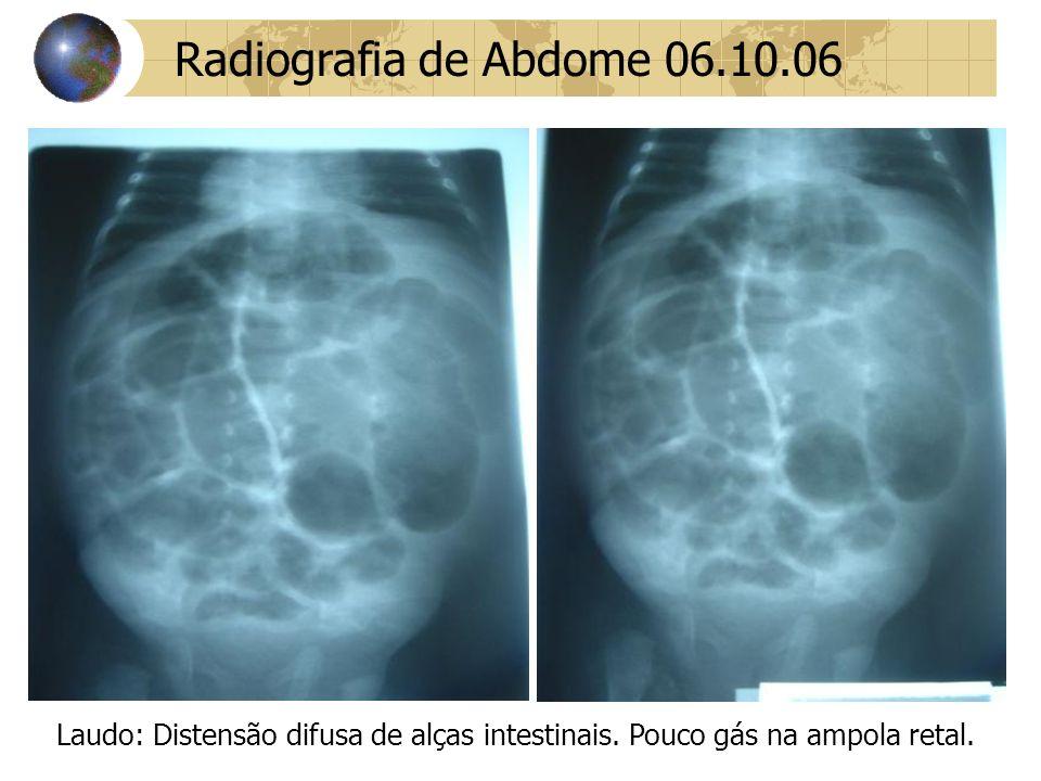 Radiografia de Abdome 06.10.06 Laudo: Distensão difusa de alças intestinais.