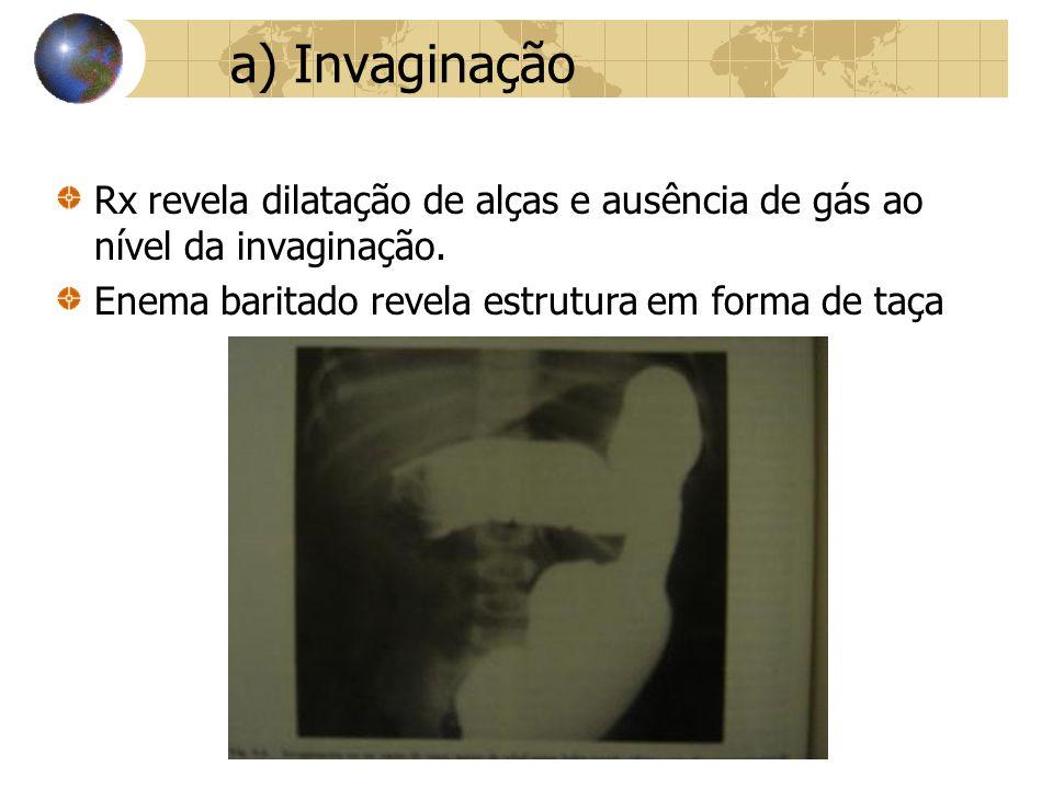 a) Invaginação Rx revela dilatação de alças e ausência de gás ao nível da invaginação.