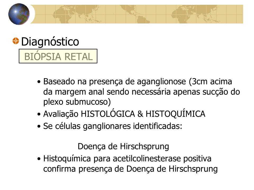 Diagnóstico BIÓPSIA RETAL Baseado na presença de aganglionose (3cm acima da margem anal sendo necessária apenas sucção do plexo submucoso) Avaliação HISTOLÓGICA & HISTOQUÍMICA Se células ganglionares identificadas: Doença de Hirschsprung Histoquímica para acetilcolinesterase positiva confirma presença de Doença de Hirschsprung