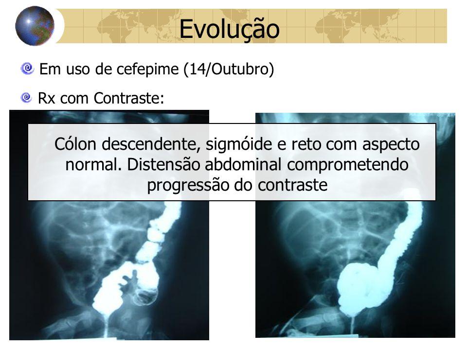 Evolução Em uso de cefepime (14/Outubro) Rx com Contraste: Cólon descendente, sigmóide e reto com aspecto normal.
