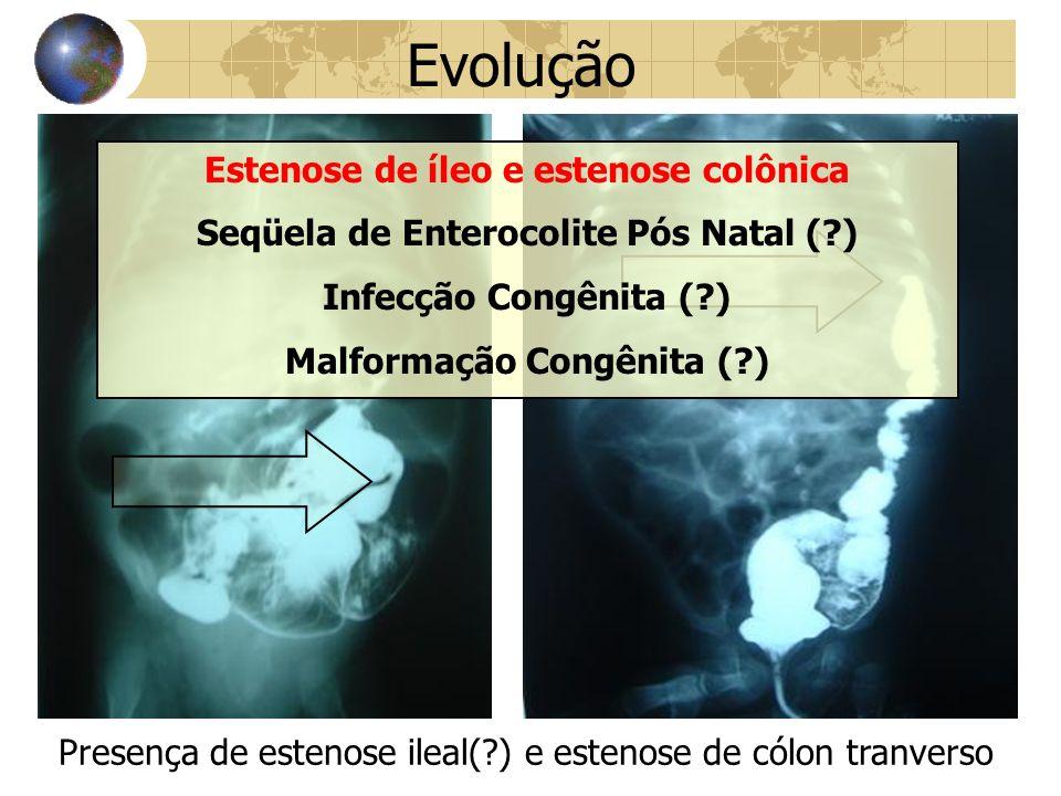 Evolução Presença de estenose ileal(?) e estenose de cólon tranverso Estenose de íleo e estenose colônica Seqüela de Enterocolite Pós Natal (?) Infecção Congênita (?) Malformação Congênita (?)