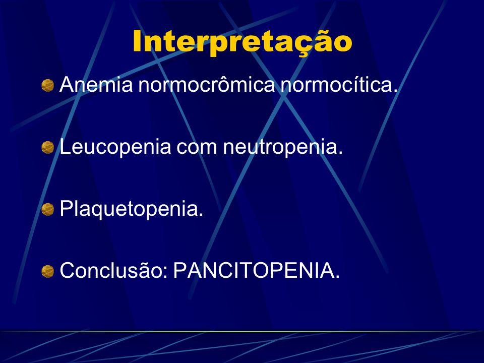 Interpretação Anemia normocrômica normocítica. Leucopenia com neutropenia. Plaquetopenia. Conclusão: PANCITOPENIA.