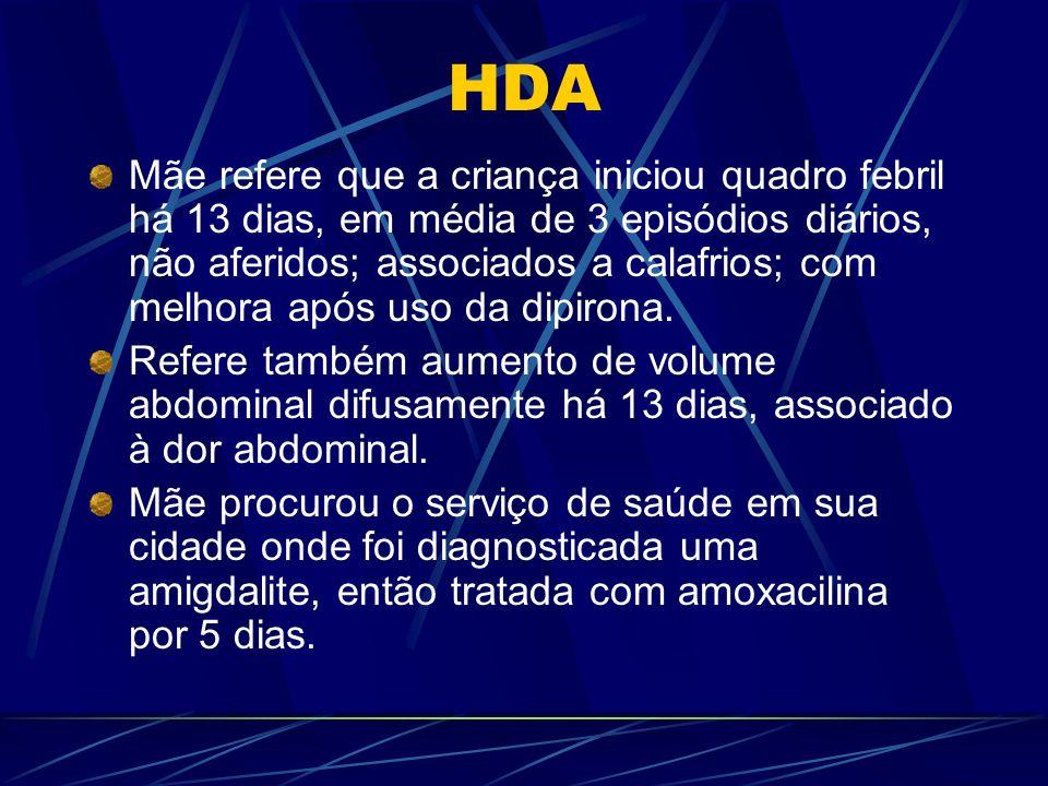 HDA Mãe refere que a criança iniciou quadro febril há 13 dias, em média de 3 episódios diários, não aferidos; associados a calafrios; com melhora após