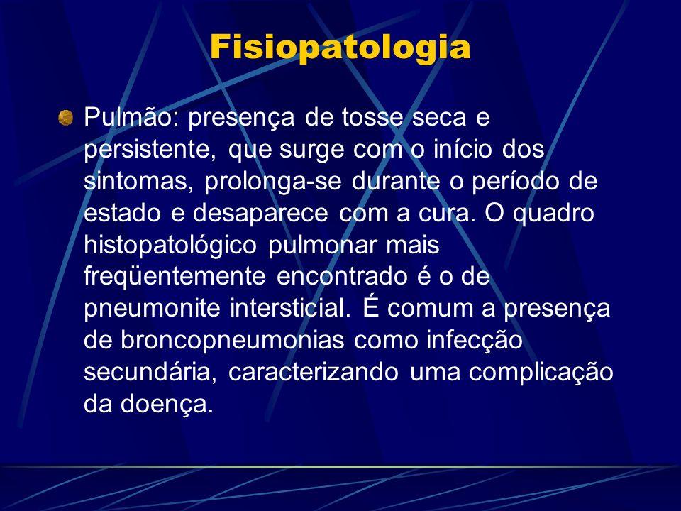 Fisiopatologia Pulmão: presença de tosse seca e persistente, que surge com o início dos sintomas, prolonga-se durante o período de estado e desaparece