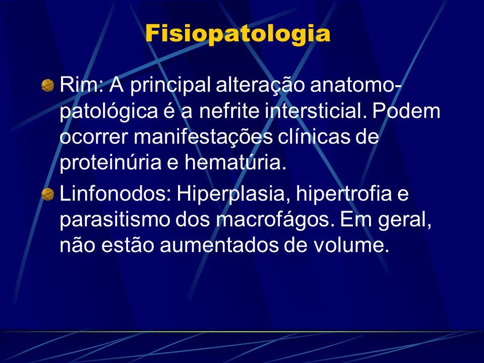 Fisiopatologia Rim: A principal alteração anatomo- patológica é a nefrite intersticial. Podem ocorrer manifestações clínicas de proteinúria e hematúri