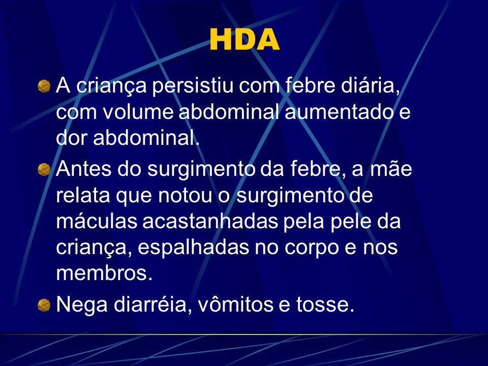 HDA A criança persistiu com febre diária, com volume abdominal aumentado e dor abdominal. Antes do surgimento da febre, a mãe relata que notou o surgi