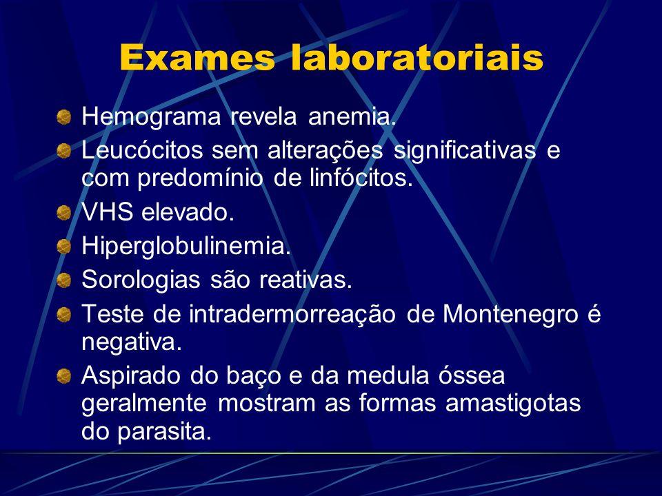 Exames laboratoriais Hemograma revela anemia. Leucócitos sem alterações significativas e com predomínio de linfócitos. VHS elevado. Hiperglobulinemia.