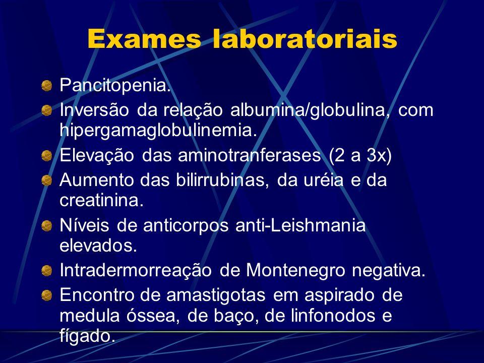 Exames laboratoriais Pancitopenia. Inversão da relação albumina/globulina, com hipergamaglobulinemia. Elevação das aminotranferases (2 a 3x) Aumento d