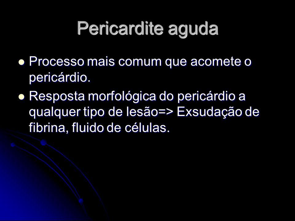 Pericardite aguda Processo mais comum que acomete o pericárdio. Processo mais comum que acomete o pericárdio. Resposta morfológica do pericárdio a qua