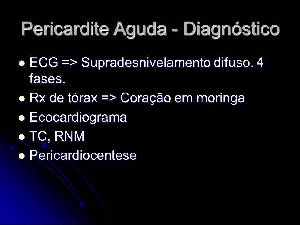 Pericardite Aguda - Diagnóstico ECG => Supradesnivelamento difuso. 4 fases. ECG => Supradesnivelamento difuso. 4 fases. Rx de tórax => Coração em mori