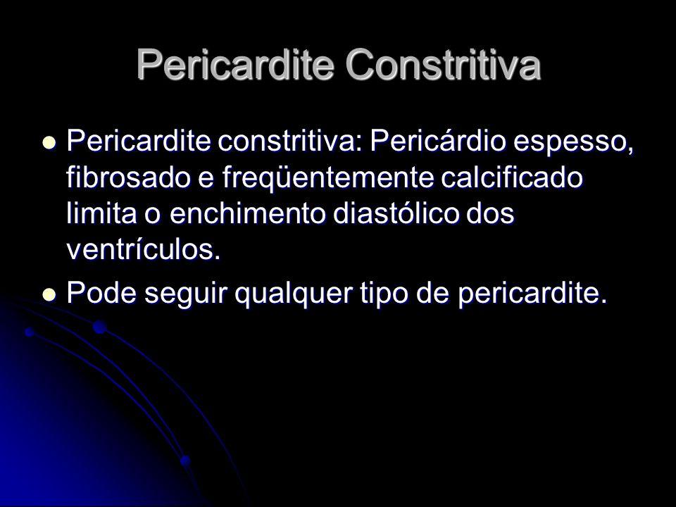 Pericardite Constritiva Pericardite constritiva: Pericárdio espesso, fibrosado e freqüentemente calcificado limita o enchimento diastólico dos ventríc