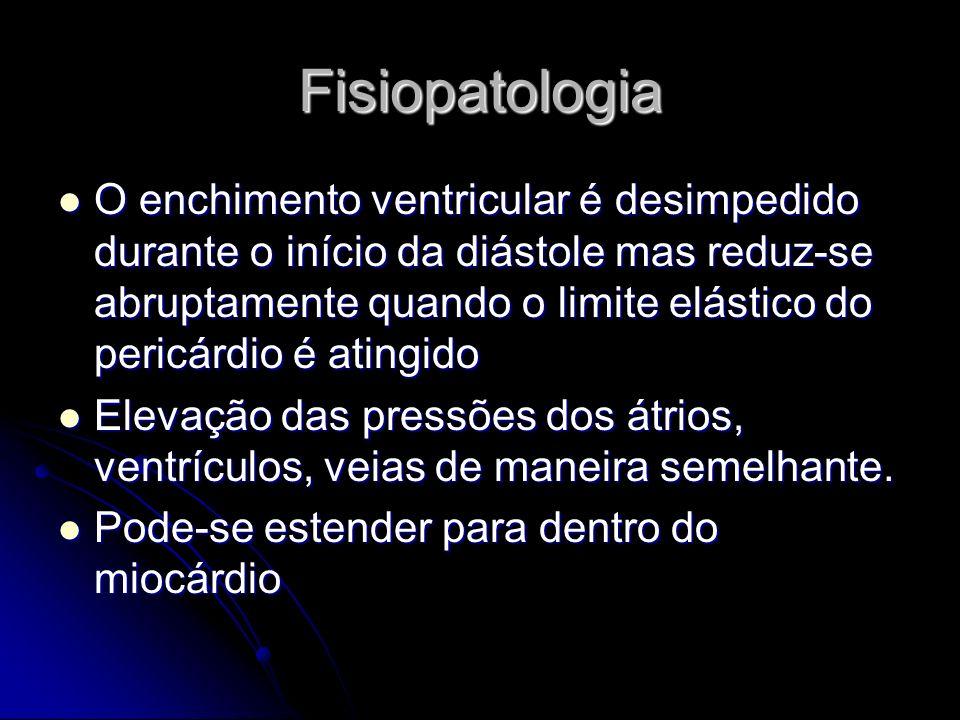 Fisiopatologia O enchimento ventricular é desimpedido durante o início da diástole mas reduz-se abruptamente quando o limite elástico do pericárdio é