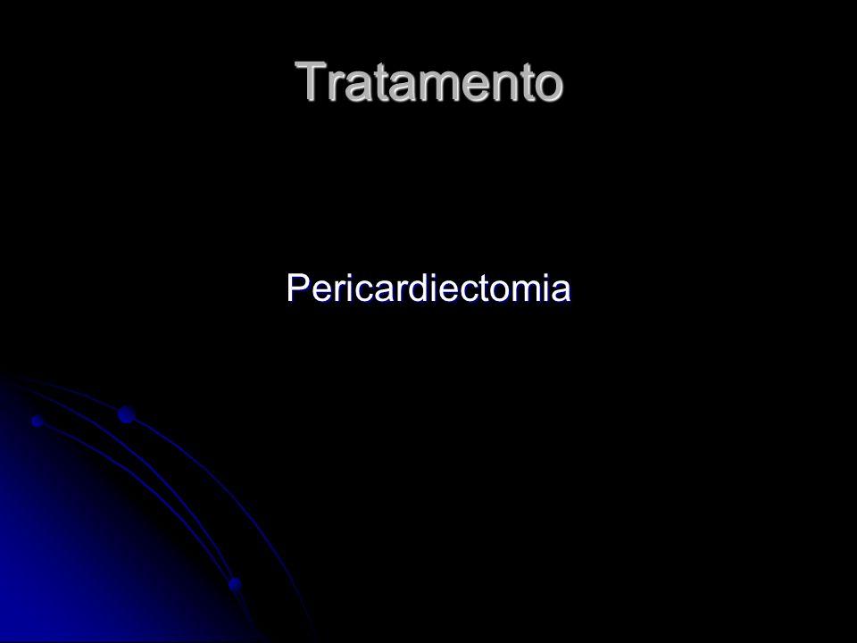Tratamento Pericardiectomia