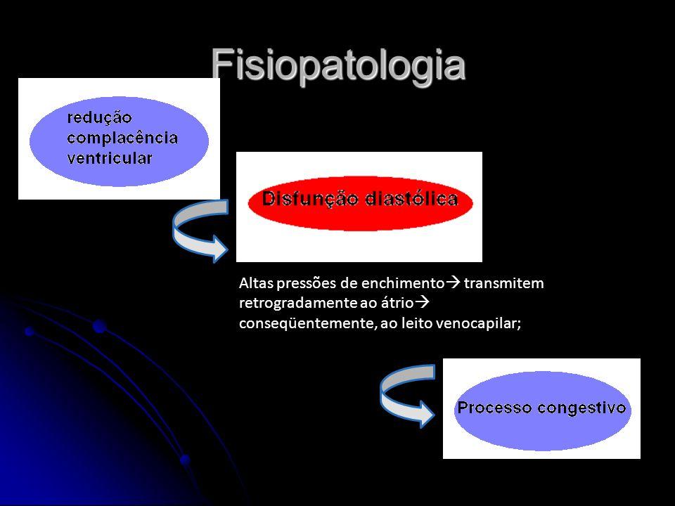 Fisiopatologia Altas pressões de enchimento transmitem retrogradamente ao átrio conseqüentemente, ao leito venocapilar;