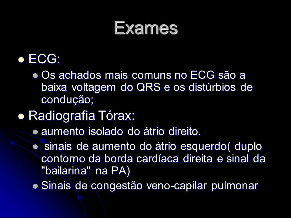 Exames ECG: ECG: Os achados mais comuns no ECG são a baixa voltagem do QRS e os distúrbios de condução; Os achados mais comuns no ECG são a baixa volt