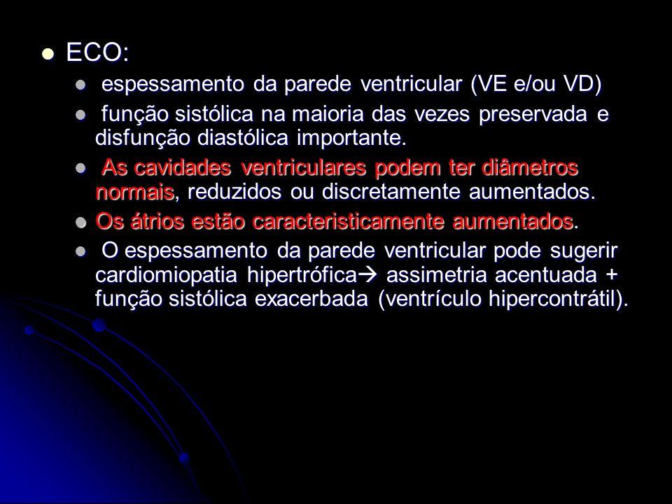 ECO: ECO: espessamento da parede ventricular (VE e/ou VD) espessamento da parede ventricular (VE e/ou VD) função sistólica na maioria das vezes preser
