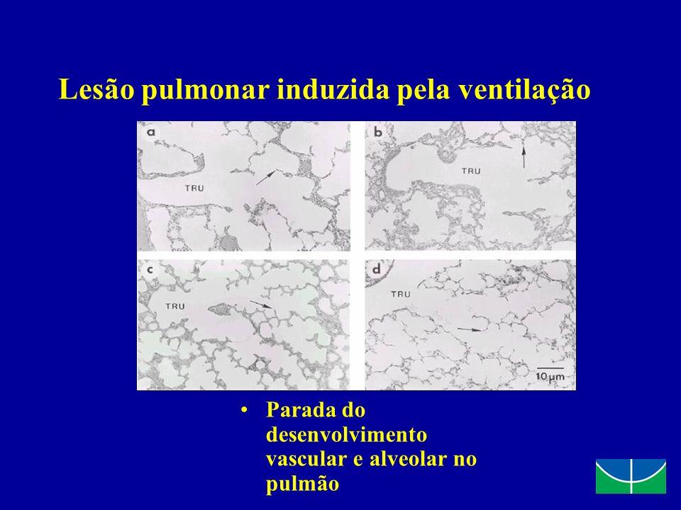 Lesão pulmonar induzida pela ventilação Parada do desenvolvimento vascular e alveolar no pulmão Jobe & Ikegami. Curr Opin Pediatr 2001, 13:124-129 Job