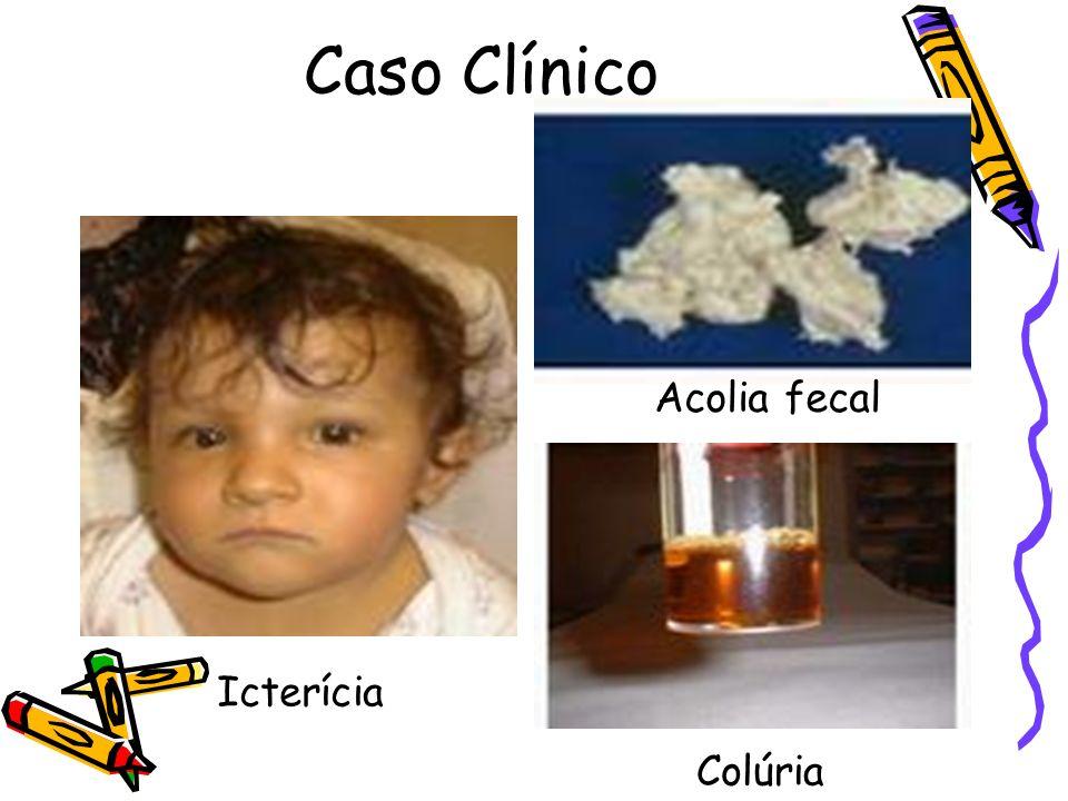 Caso Clínico Acolia fecal Colúria Icterícia Acolia fecal Colúria