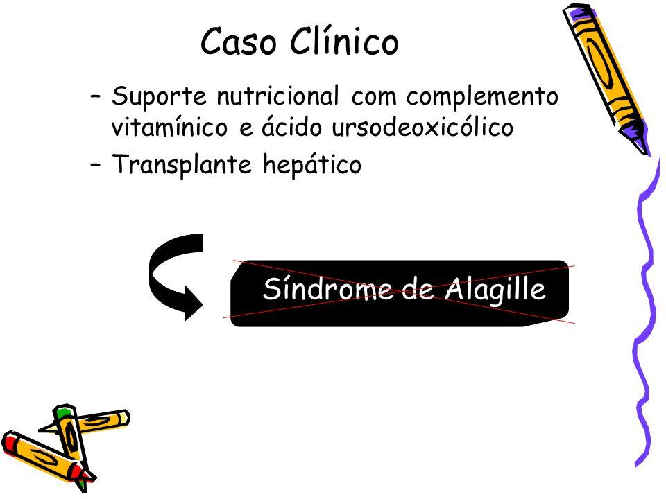 Caso Clínico –Suporte nutricional com complemento vitamínico e ácido ursodeoxicólico –Transplante hepático Síndrome de Alagille