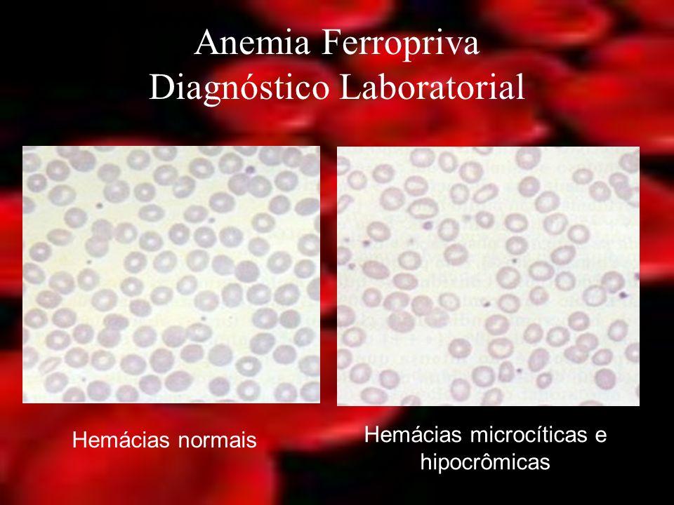 Anemia Ferropriva Diagnóstico Laboratorial Hemácias normais Hemácias microcíticas e hipocrômicas