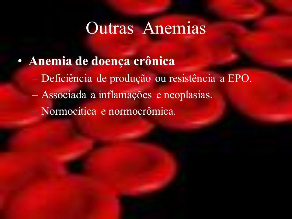 Outras Anemias Anemia de doença crônica –Deficiência de produção ou resistência a EPO. –Associada a inflamações e neoplasias. –Normocítica e normocrôm