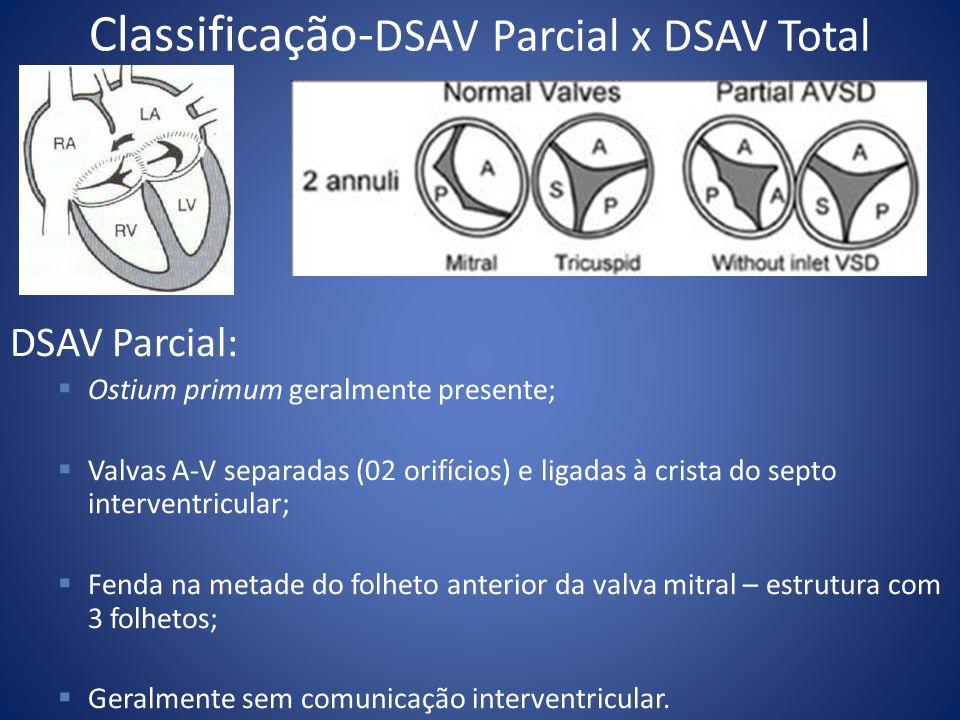 Classificação- DSAV Parcial x DSAV Total DSAV Parcial: Ostium primum geralmente presente; Valvas A-V separadas (02 orifícios) e ligadas à crista do se