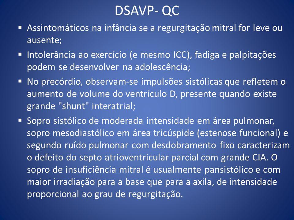 DSAVP- QC Assintomáticos na infância se a regurgitação mitral for leve ou ausente; Intolerância ao exercício (e mesmo ICC), fadiga e palpitações podem