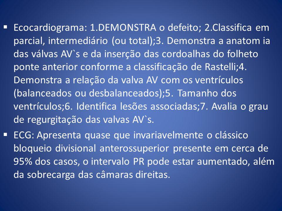 Ecocardiograma: 1.DEMONSTRA o defeito; 2.Classifica em parcial, intermediário (ou total);3. Demonstra a anatom ia das válvas AV`s e da inserção das co