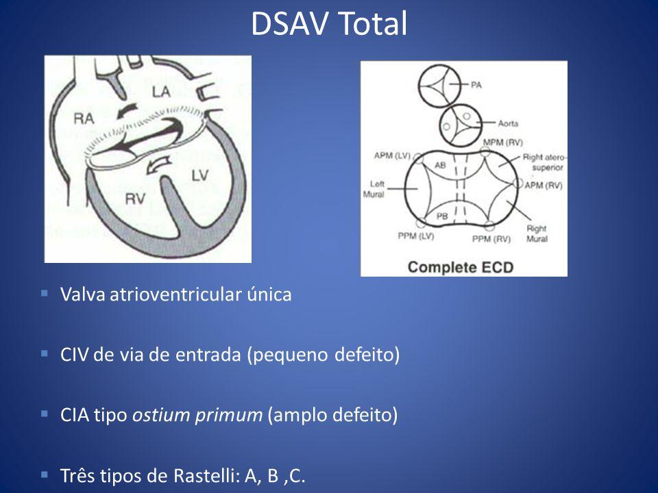 DSAV Total Valva atrioventricular única CIV de via de entrada (pequeno defeito) CIA tipo ostium primum (amplo defeito) Três tipos de Rastelli: A, B,C.