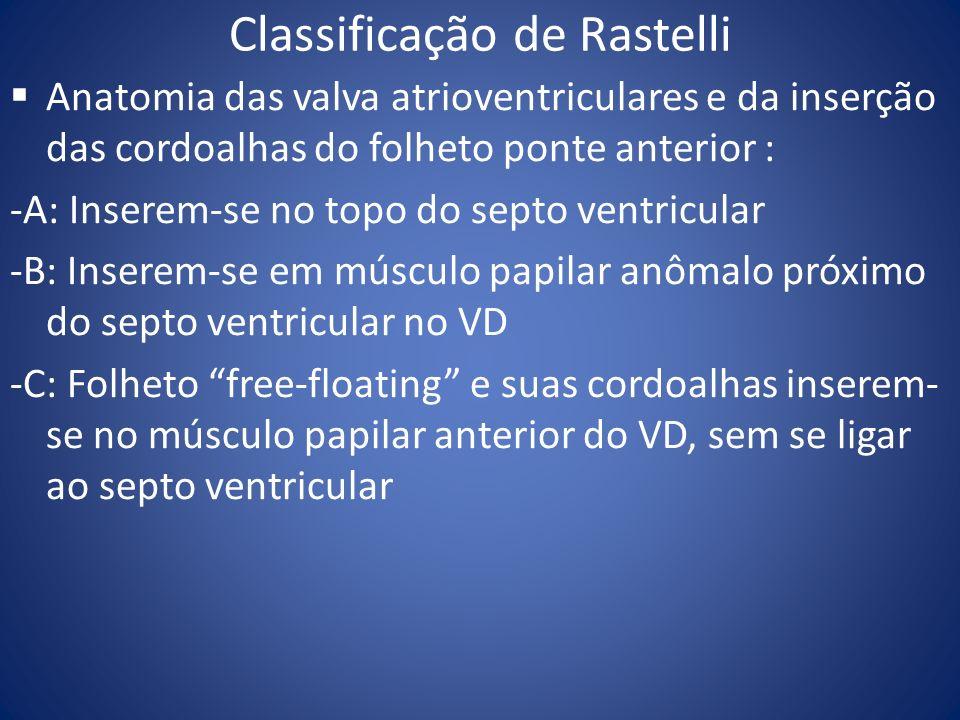 Classificação de Rastelli Anatomia das valva atrioventriculares e da inserção das cordoalhas do folheto ponte anterior : -A: Inserem-se no topo do sep