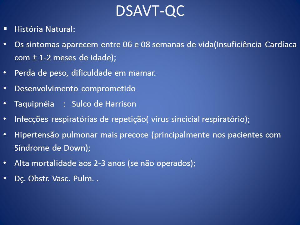 DSAVT-QC História Natural: Os sintomas aparecem entre 06 e 08 semanas de vida(Insuficiência Cardíaca com ± 1-2 meses de idade); Perda de peso, dificul