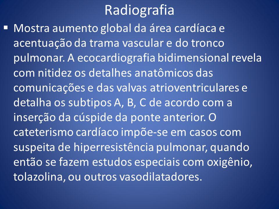 Radiografia Mostra aumento global da área cardíaca e acentuação da trama vascular e do tronco pulmonar. A ecocardiografia bidimensional revela com nit