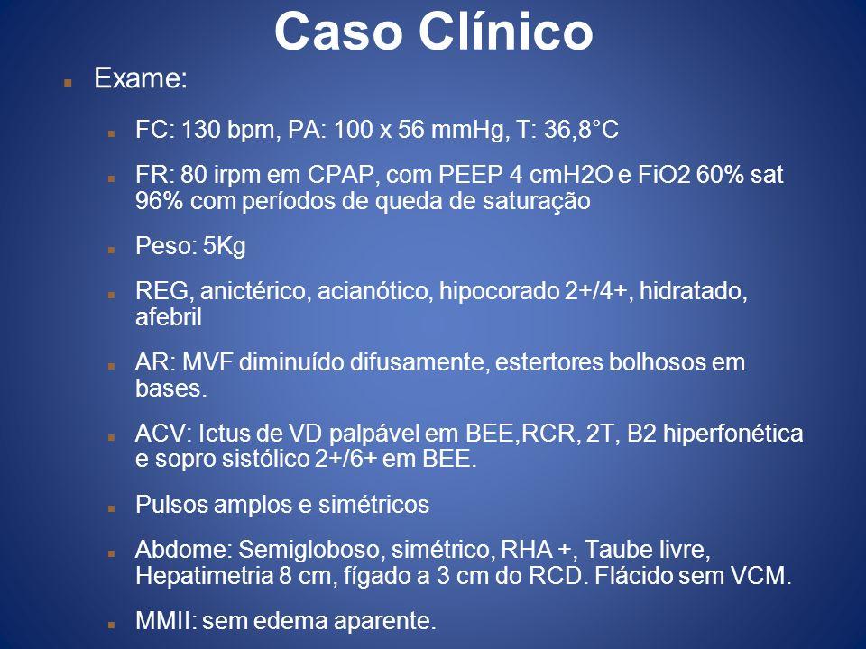 Caso Clínico Exame: FC: 130 bpm, PA: 100 x 56 mmHg, T: 36,8°C FR: 80 irpm em CPAP, com PEEP 4 cmH2O e FiO2 60% sat 96% com períodos de queda de satura