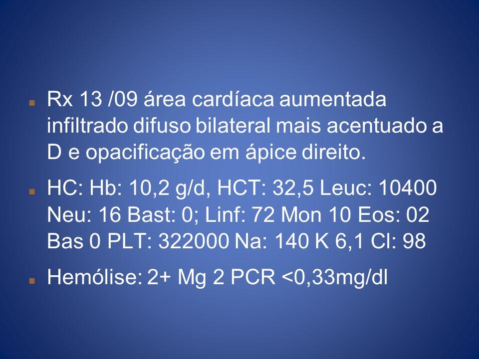 Rx 13 /09 área cardíaca aumentada infiltrado difuso bilateral mais acentuado a D e opacificação em ápice direito. HC: Hb: 10,2 g/d, HCT: 32,5 Leuc: 10