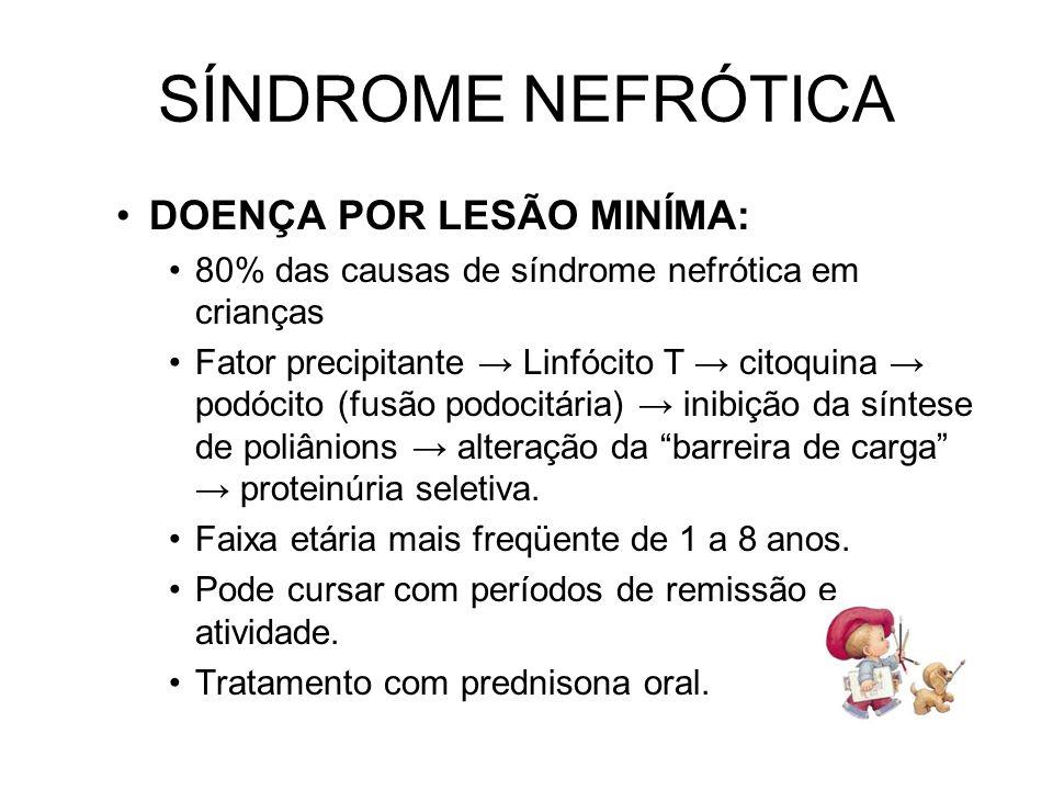 SÍNDROME NEFRÓTICA DOENÇA POR LESÃO MINÍMA: 80% das causas de síndrome nefrótica em crianças Fator precipitante Linfócito T citoquina podócito (fusão