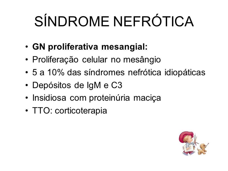 SÍNDROME NEFRÓTICA GN proliferativa mesangial: Proliferação celular no mesângio 5 a 10% das síndromes nefrótica idiopáticas Depósitos de IgM e C3 Insi