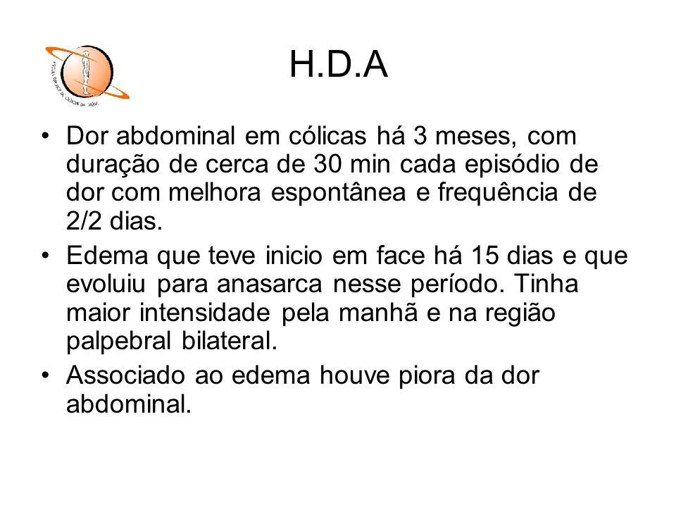 H.D.A Dor abdominal em cólicas há 3 meses, com duração de cerca de 30 min cada episódio de dor com melhora espontânea e frequência de 2/2 dias. Edema