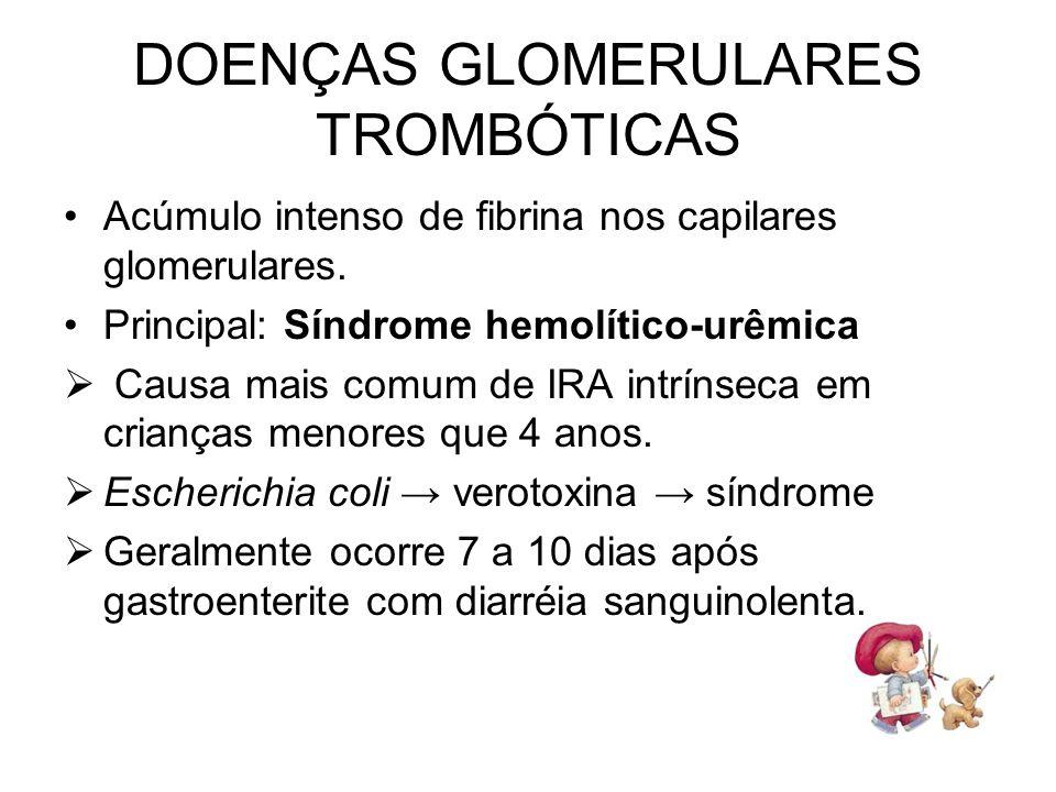 Acúmulo intenso de fibrina nos capilares glomerulares. Principal: Síndrome hemolítico-urêmica Causa mais comum de IRA intrínseca em crianças menores q