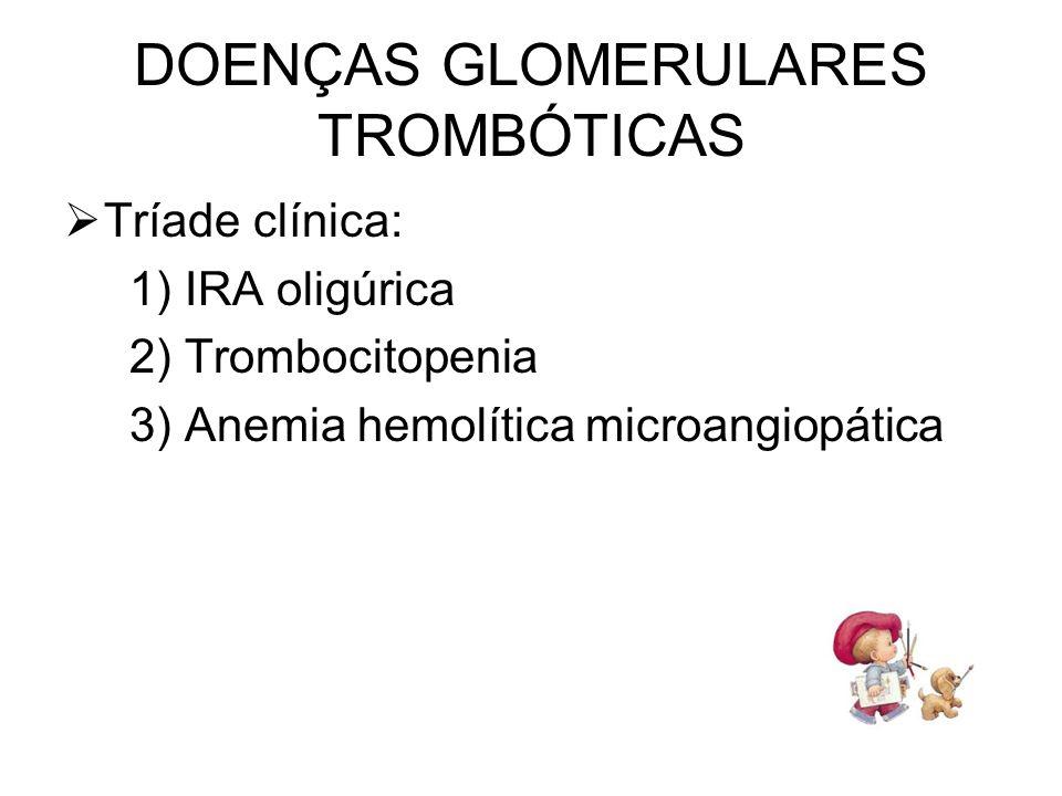 DOENÇAS GLOMERULARES TROMBÓTICAS Tríade clínica: 1) IRA oligúrica 2) Trombocitopenia 3) Anemia hemolítica microangiopática