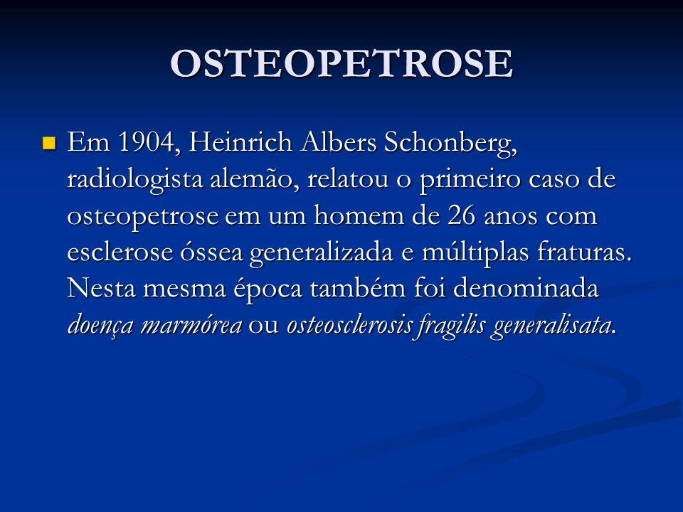 OSTEOPETROSE Em 1904, Heinrich Albers Schonberg, radiologista alemão, relatou o primeiro caso de osteopetrose em um homem de 26 anos com esclerose óssea generalizada e múltiplas fraturas.