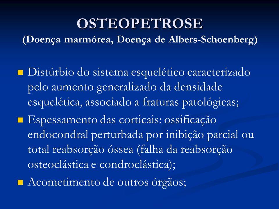OSTEOPETROSE OSTEOPETROSE (Doença marmórea, Doença de Albers-Schoenberg) Distúrbio do sistema esquelético caracterizado pelo aumento generalizado da densidade esquelética, associado a fraturas patológicas; Espessamento das corticais: ossificação endocondral perturbada por inibição parcial ou total reabsorção óssea (falha da reabsorção osteoclástica e condroclástica); Acometimento de outros órgãos;